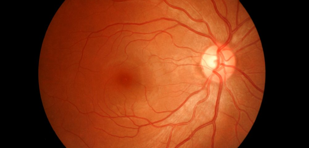 Bull's Eye Retinopathy Yet Another Visual Anomaly of Alport Syndrome, Researchers Find