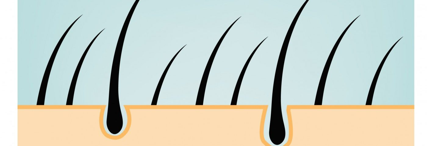 Patients' Hair Used to Identify Gene Variant Leading to Alport Syndrome