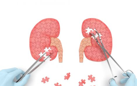 US Kidney Disease Data Points to Need for Early Detection and Better Awareness, AKF Says